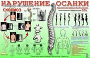 Лечения нарушений осанки  и сколиоза